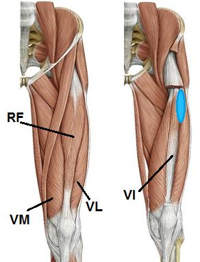 大腿五頭筋
